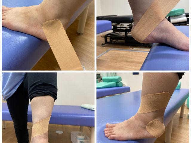 つらい足底腱膜炎を楽にするテーピングとは